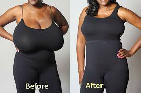 Reasons To Why Women Get Breast Reduction Surgery