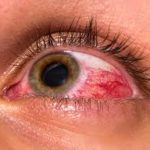 How to Detect the Eye Disease