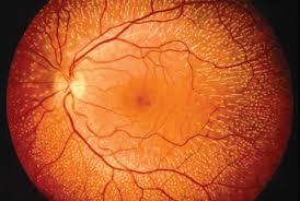 retina specialist eye nervous central