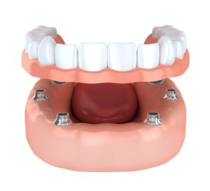 Denture Implants white teeth