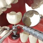 Implant Retained Dentures Care and Procedure