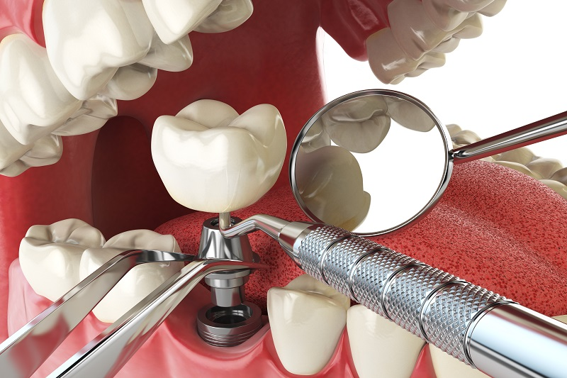 Retained Dentures Care tooth extraction