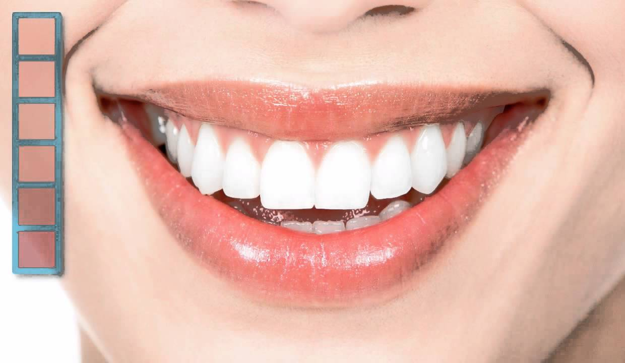 Things to keep in mind before undergoing an Aesthetic dentistry procedure smile