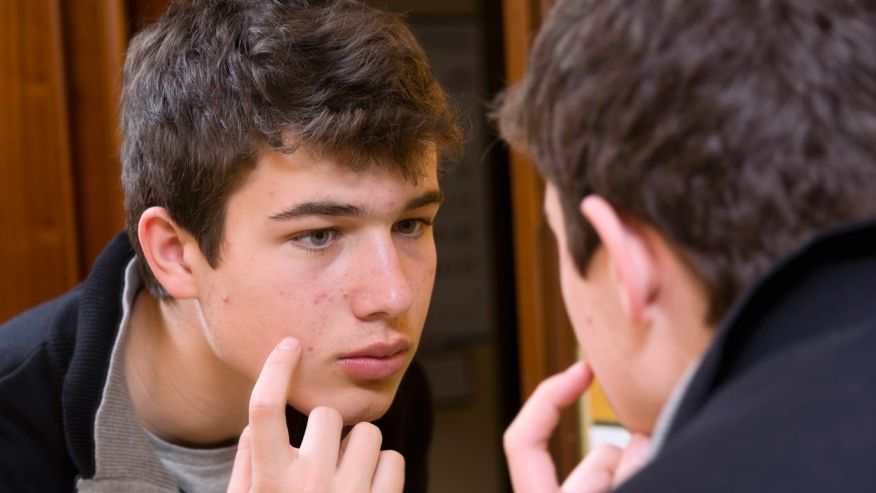 According To a Recent Study, Teen Acne may be Associated with Prostate Cancer