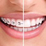 5 Different Kinds Of Cosmetic Dentistry You Need To Know About