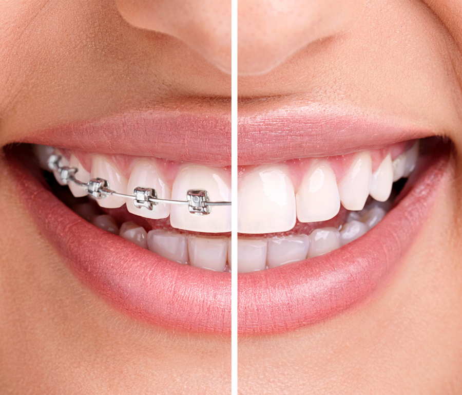 Things to keep in mind before undergoing an Aesthetic dentistry procedure braces