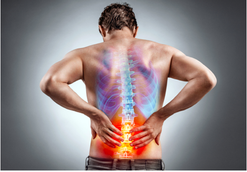 Physio for Nerve Pain and Injury