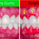 How to Have Healthy Gums