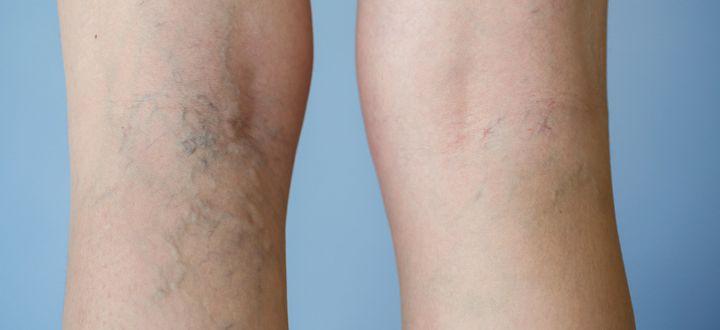 Varicose veins: Treatment and Myths