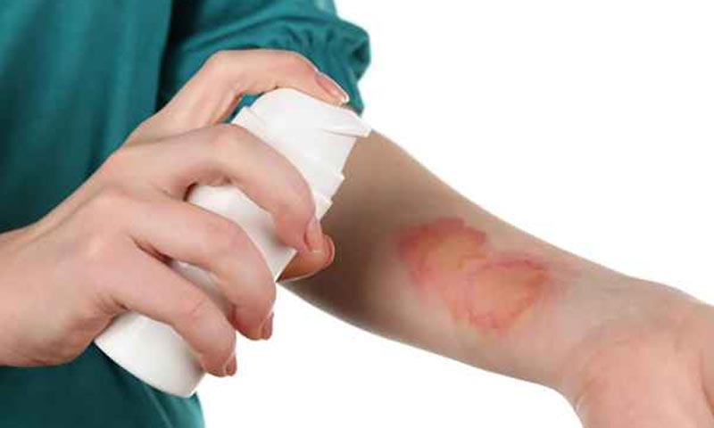 7 Tips for Taking Care of Burns at Home