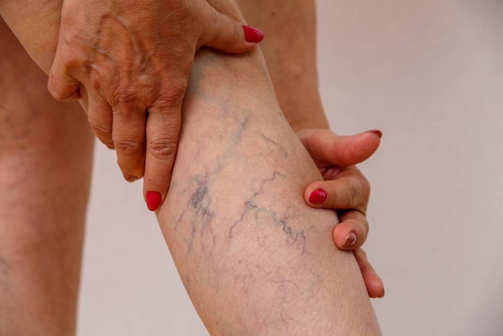 6 Most Common Causes of Varicose Veins
