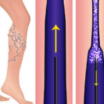 How To Eliminate Varicose Veins With Sclerotherapy Treatments