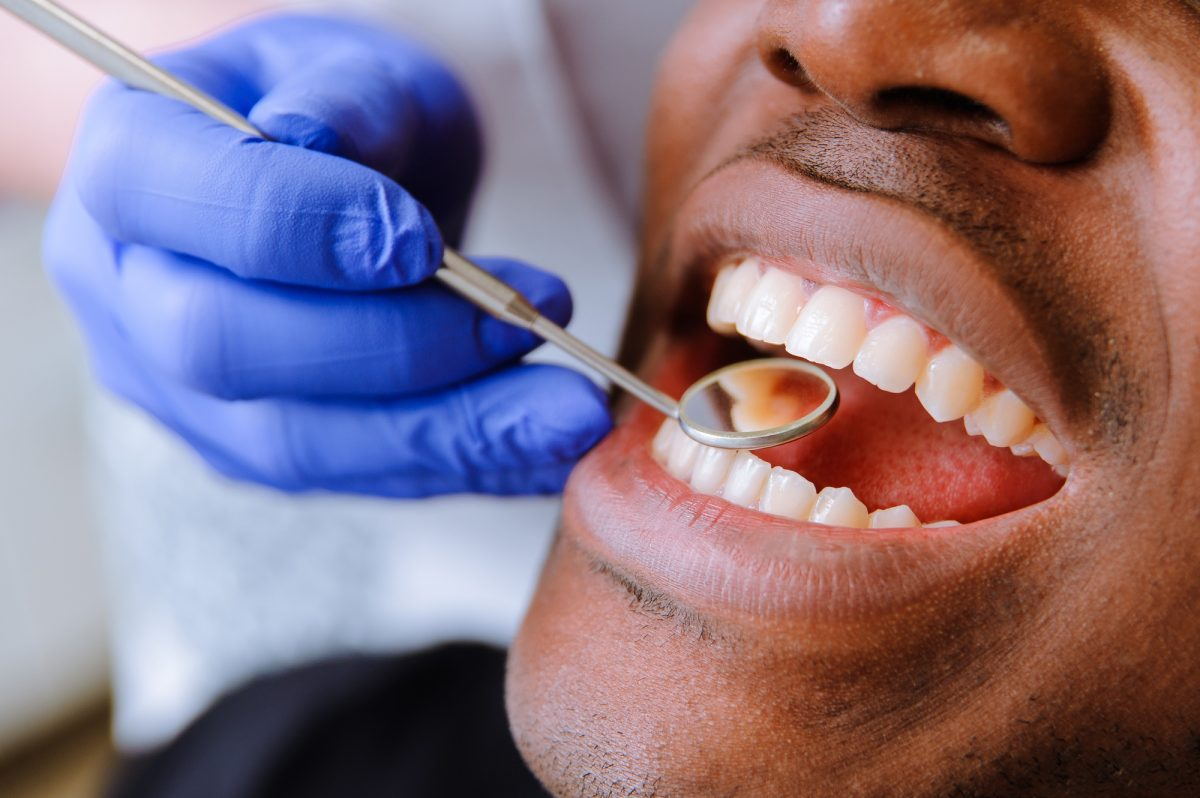 This Is How Much a Dental Visit Will Cost You (With or Without Insurance)