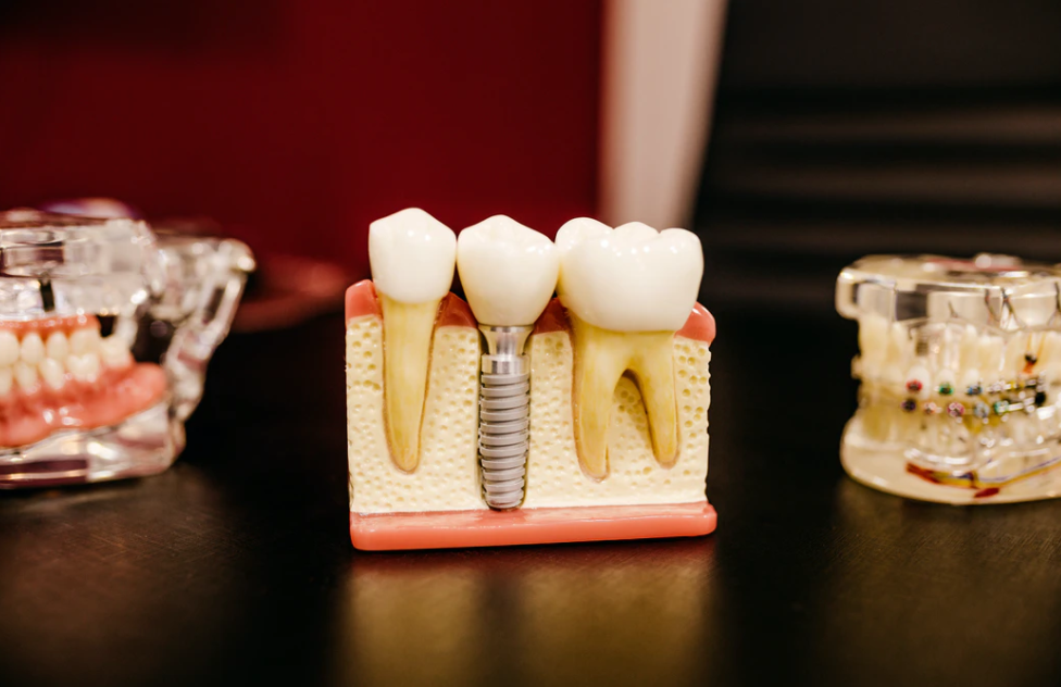5 Tips For Selecting a Dentist