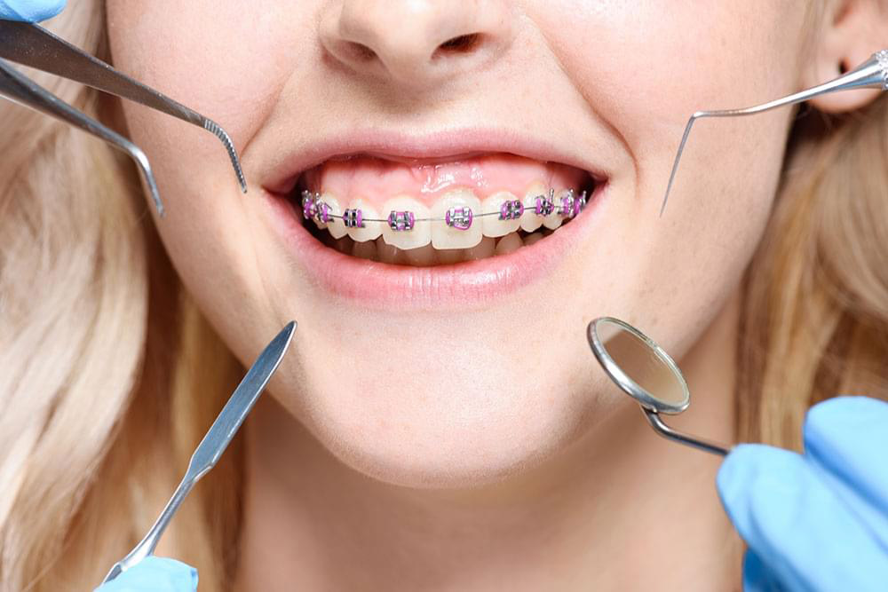 What Services Should You Expect From an Orthodontist?