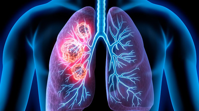 Classification of Lung Cancer